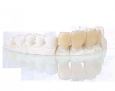 Realizzazione corone dentali in stereolitografia